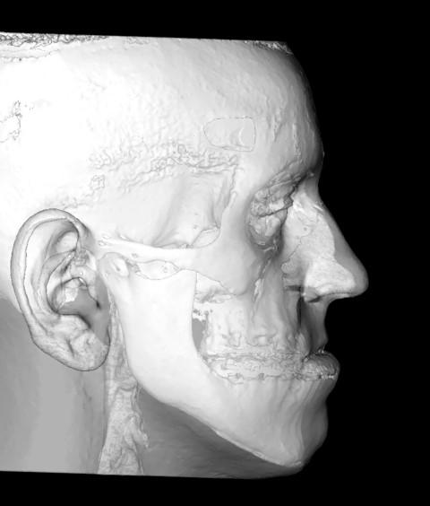 S-a lansat NAOS, prima clinică specializată în chirurgie ortognatică din România